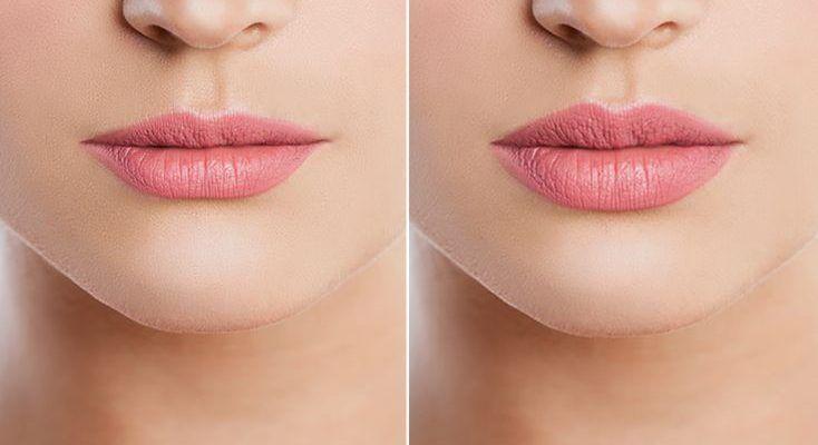 Gespritzte Lippen