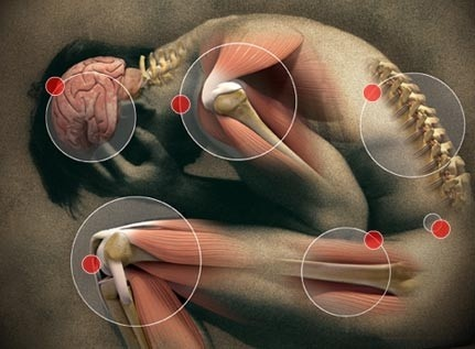 Anyone can be affected by Chronic Pain Syndrome