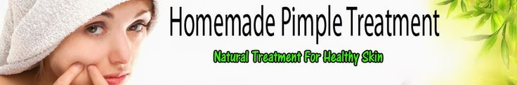 Acne Home Remedies   Home made Pimple Treatment    Home Remedies For Acne