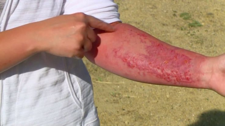 DES MOINES — A weed common in Kansas and Missouri, caused an Iowa woman to break out in a painful, bubbly, rash on her arm. Wendy Prusha of Union, Iowa, was exposed to Wild Parsnip while wor…
