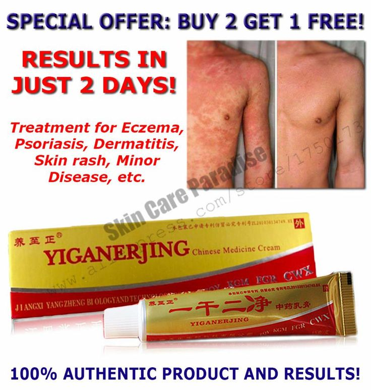 [Visit to Buy] HOT !! Natrual Eczema Skin Rash Psoriasis Dermatitis Vitiligo Minor Disease Cream 15g BUY 2 GET 1 FREE #Advertisement
