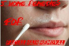 Unwanted facial hair whether it is on the cheeks, forehead, upper lip or chin can make women feel unattractive and unfeminine. Although, it is natural to have fine hair on your face, excessive, thi…