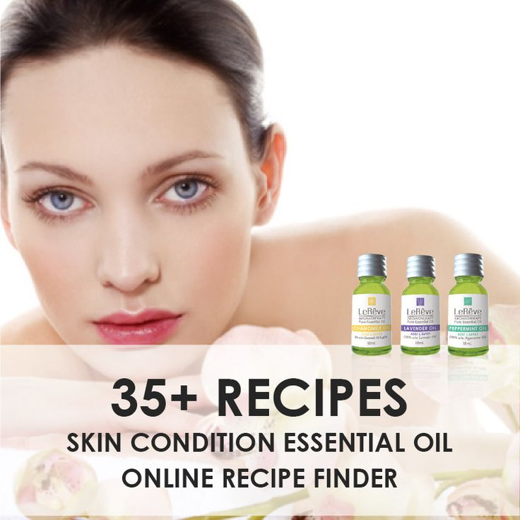 Access over 35 aromatherapy recipes to assist the treatment of skin conditions naturally online at http://www.aromatherapy.net.au/recipe-finder/skin-conditions/