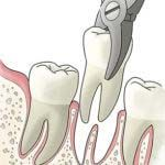 With sedation dentistry San Diego, you won't think twice about seeing your dentist anymore, as this technique is pleasant, comfortable & pain-free.