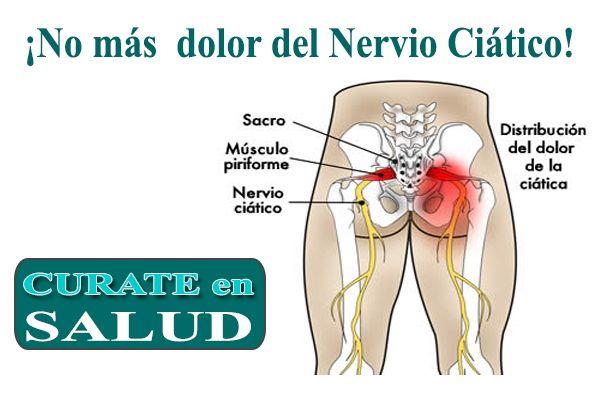 La neuritis ciática, es una enfermedad que afecta el sistema nervioso  y es muy…
