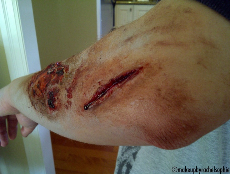 Gash and Grazing. Special FX Makeup by Rachel Sophie