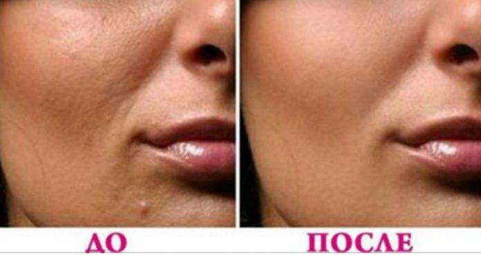 Для здоровой и сияющей кожи нужен надлежащий уход, здоровое питание, мыть лицо дважды в день и никогда не спать с косметикой. Очищающие продукты для лица полны химических веществ...