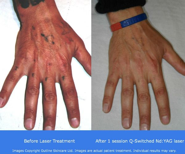 17 best images about tattoo removal before and after on for Natural remedies for tattoo removal