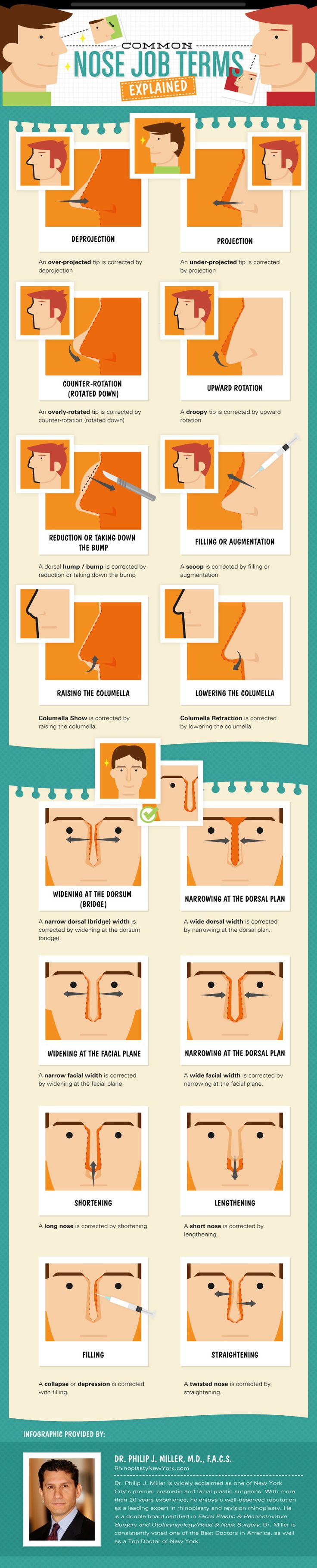 This Rhinoplasty infographic will help to educate you on all of your alternatives and explain the common nose jobs terms surgeons use - Plastic Surgery Infographic