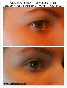 HELP FOR DROOPING EYE LIDS USE AN EGG WHITE BRUSHED ON THE EYELIDS WITH A Q-TIP.  LET IT DRY. EXPERIMENT ON WHERE TO APPLY IT.