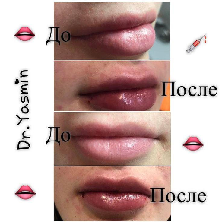 @yasmin_cosmetolog ����⚕️LIPS�� ��Увеличение губ филером на основе гиалуроновой кислоты�� #lips #nice#face #beauty #beautyblog #health #lifestyle #gialuronicacid #dryasmin #makhachkala #dagestan #sanktpeterburg #dubai #cosmetology #обучение #махачкала #дагестан http://tipsrazzi.com/ipost/1513192883455482802/?code=BT_8OkHA1uy