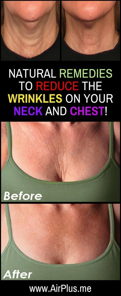 Natural Remedies To Reduce The Wrinkles On Your Neck & Chest! http://beautifulclearskin.net/category/clear-skin-tips/