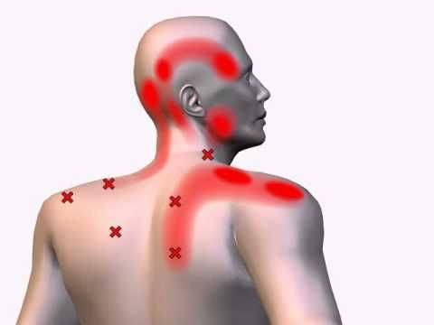 Trigger points in the Trapezius Muscle are associated with a number of painful conditions including tension headache, chronic neck pain and stiffness, cervical spine pain, whiplash, facial/jaw pain, upper shoulder pain, mid-back pain, dizziness, and eye pain.  Impaired postural alignment, incorrect scapulothoracic kinematics and muscle imbalances are the root cause.  Eliminate the cause to eliminate the symptoms.   Regular exercise, staying fit, good postural alignment and se
