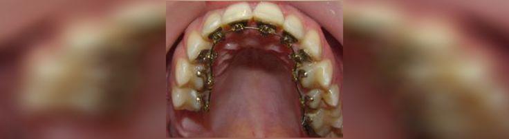 Combien coûte le traitement orthodontique en Roumanie? Nous vous invitons à voir les prix ici et contactez-nous immédiatement: http://www.intermedline.com/dental-clinics-romania/ #tourismedentaire #tourismedentaireenRoumanie #voyagedentaire #voyagedentaireenRoumanie #cliniquedentaire #cliniquedentaireenRoumanie #dentistes #dentistesenRoumanie #soinsdentaires #soinsdentairesenRoumanie  #traitementorthodontique #traitementorthodontiqueenRoumanie #orthodontie #orthodontieenRoumanie…
