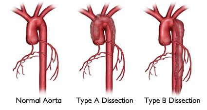 ascending aortic aneurysm types of aortic aneurysms diagram of body veins