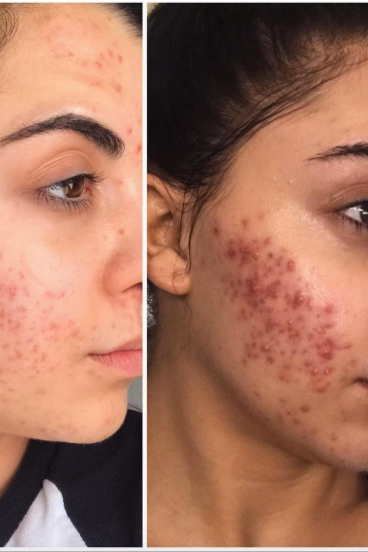 Best Product To Get Rid Of Acne Getridofacneovernight Getridofacnefast Getridofacneroutine In 2020 Remove Acne How To Get Rid Of Acne Acne Treatment Cream