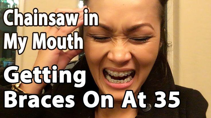 Getting Braces on , Adult Braces, Orthodontics