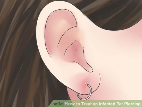How to Treat an Infected Ear Piercing: 14 Steps