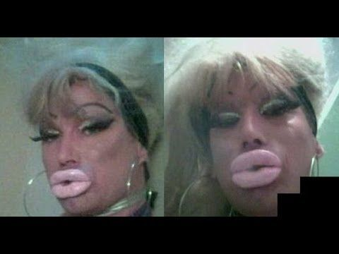 59 Best Images About Plastic Surgery Nightmares On