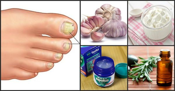 La eliminación de hongos en los pies puede llegar a ser muy tediosa. El cuidado adecuado de la piel y una buena higiene pueden ayudar a tratar, así como a prevenir el pie de atleta y los hongos en las uñas. En la mayoría de los casos, si tienes hongos en los pies, puedes tratarlos de manera fácil con el uso de remedios caseros, simples y efectivos.   1.Vinagre La propiedad ácida del vinagre ayuda a matar los hongos de las unas