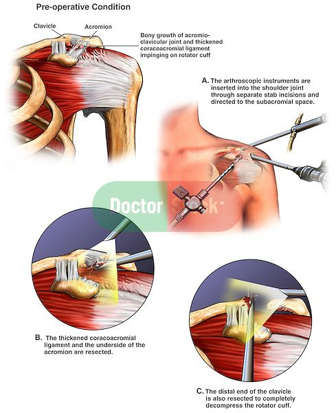 Impinged shoulder rheumatoid arthritis