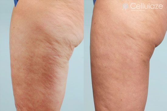 Cellulaze Before and After Photos: Thighs Liposuction and Cellulite Removal
