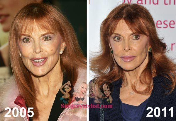 Pin By Kincet On Celebrity Plastic Surgery Tina Louise