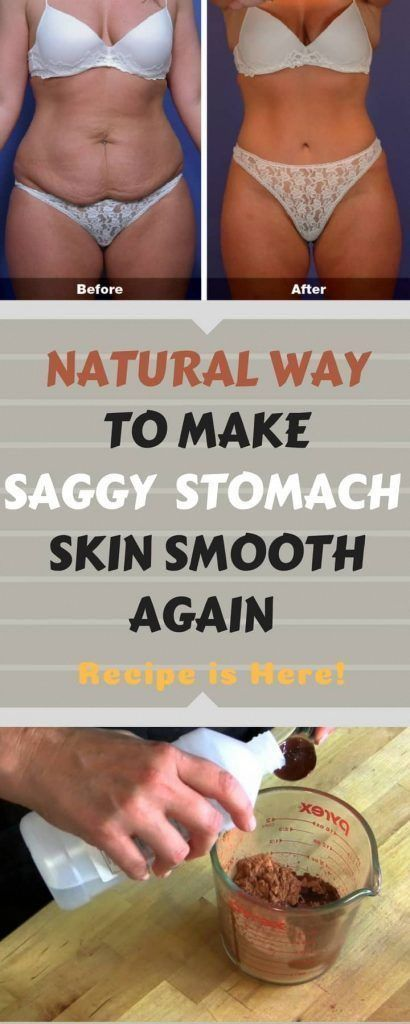 How one can Make Stomach Skin Tighter #SaggyStomachAfterWeightLoss