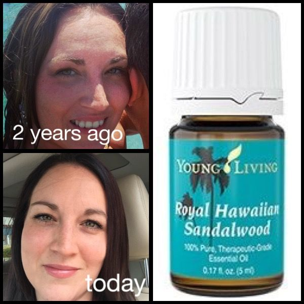 Young living Royal Hawaiian Sandalwood essential oil for skin If you are not yet a member and would like to order the Premium Starter Kit with 11 popular oils and a diffuser, I would love to support you! Please use my referral link to get started! https://www.youngliving.com/vo/#/signup/new-start?sponsorid=2153009&enrollerid=2153009&isocountrycode=US&culture=en-US&type=member