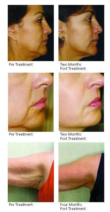ANTI-AGING and SKIN CORRECTION BLOG Skin Tightening