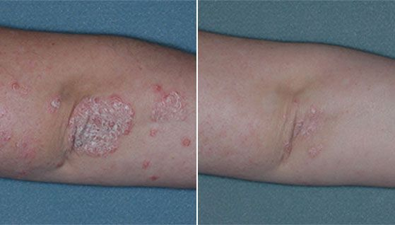 How To Get Rid Of Guttate Psoriasis Naturally