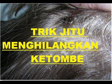 Cara Menghilangkan Ketombe, menghilangkan ketombe alami, menyembuhkan ketombe, Ketombe dapat mempengaruhi setiap daerah yang ditumbuhi rambut atau daerah den...