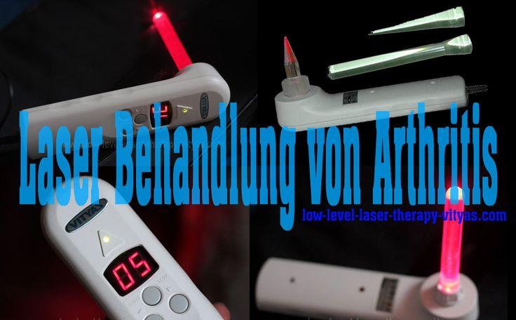 Laser Behandlung von Arthritis http://www.low-level-laser-therapy-vityas.com/LaserBehandlu… #LaserBehandlung #Arthritis