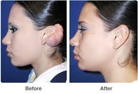 Epionebh is provided plastic ear surgery may be done in the surgeon's office, an outpatient clinic, or a hospital. our clinic is  board certified surgeons corrects the shape of large or protruding ears. Please visit  our website for more informations.