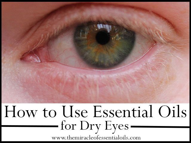 Is it possible to use essential oils for dry eyes to relieve dryness, itchiness and discomfort? Find out the safest and best ways to use essential oils