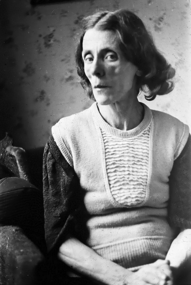 Portrait Of An Emaciated Dutch Woman During The Hongerwinter Hunger Winter Of 1944-1945 -2359