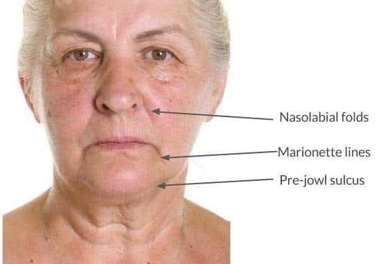 Melbourne   Nasolabial fold treatment  Dermal filler   Cost