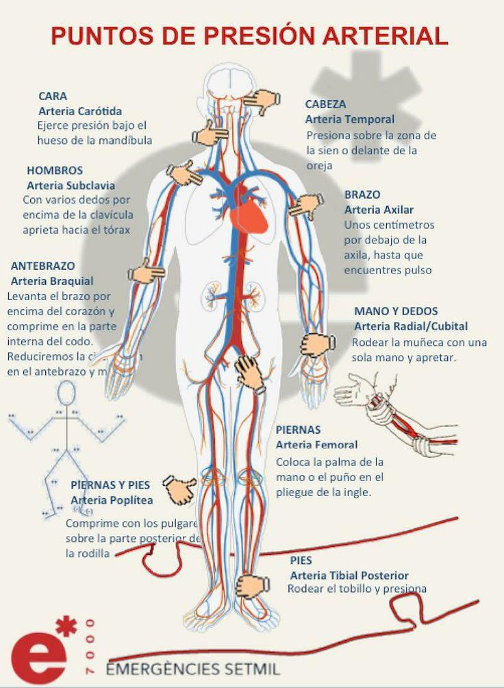 Puntos de presión arterial para parar una hemorragia
