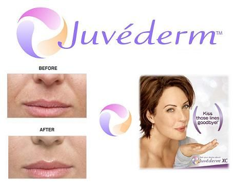 Radiance Advanced Skin and Body Care offers JUVÉDERM® Ultra Plus XC and JUVÉDERM® Ultra XC to patients in The Woodlands, Houston, Spring, and surrounding areas. If you have been looking for a way to get rid of facial lines and wrinkles, increase volume in your lips, or increase facial volume to plump up deep nasolabial …