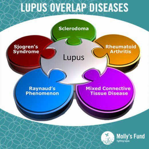 Learning how to deal with Lupus after being diagnosed. Do the foods you eat really matter? What foods should you include or exclude to make the Lupus diet work?
