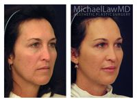 Facial Fat Grafting Patient 4 Before and After 6 months. Beautiful and Natural looking results by Dr. Michael Law. For more info call (919) 256-0900 or visit   http://www.michaellawmd.com/rejuve.html  #fatgrafting #facialfatgrafting #plasticsurgery #plasticsurgeon #bestplasticsurgeon #bestplasticsurgery #raleighplasticsurgeon #michaellawmd #mlmd #bluewaterspa #bluewatersparaleigh #plasticsurgerybeforeandafter #beforeandafter #photos #postop #6months #naturalresults #bestresults
