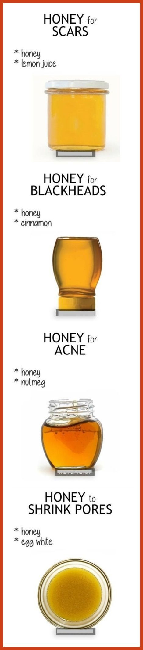Homemade Acne Remedies - Pregnancy Acne Remedies * You can get more details by clicking on the image. #facial