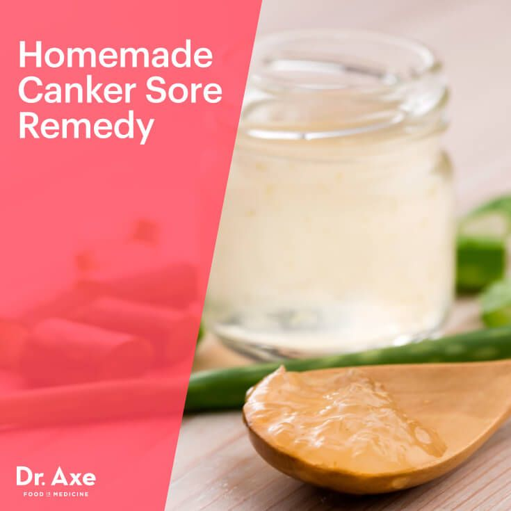 Canker sore remedy - Dr. Axe http://www.draxe.com #health #holistic #natural