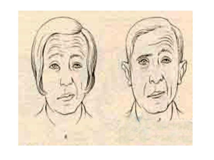 facial nerve palsy exercises