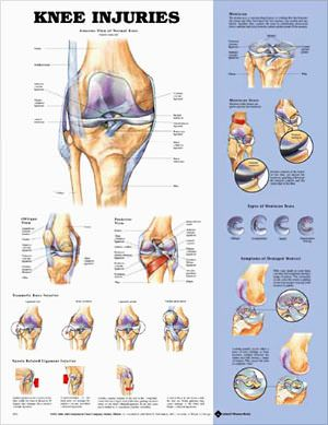 Knee Injuries: Work, Knee Injuries, Anterior View, Normal Knee, Knee Injury, Anatomical Chart, Knee Anatomy, Posterior Views, Injuries Anatomical