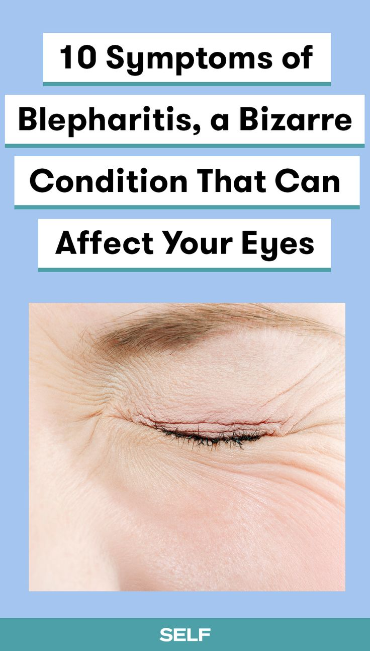 10 Symptoms of Blepharitis, a Bizarre Condition That Can Affect Your EyesLola Thebeau