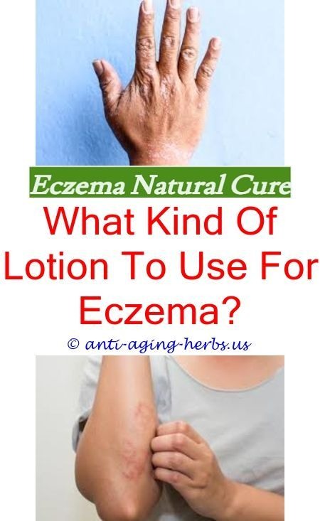 Baby Eczema Products Creams To Help Eczema Neosporin Eczema Coupon