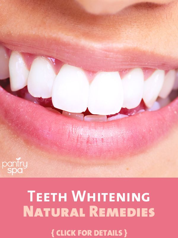 If you are nervous about using harsh chemicals to whiten your teeth, these home remedies may work perfectly for you to acheive a brighter smile!