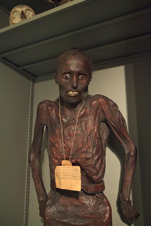 Museo di Anatomia Umana (Museum of Human Anatomy) of Pisa. via Morbid Anatomy.
