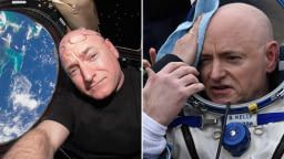 Scott Kelly's Body Has Been Going Through Gruesome Hell Right After He Got Back From Space